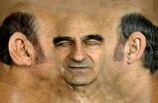 stelarc prosthetic head
